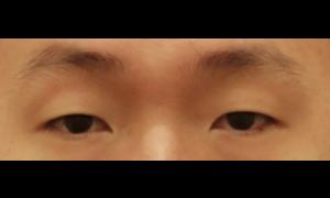 남자 눈매교정 후기입니다