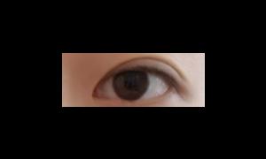 한쪽 눈수술 후기