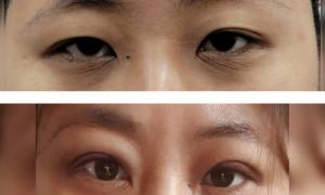 절개+눈매교정 수술후기!