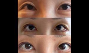 쌍꺼풀 재수술(+눈매교정+눈꺼풀 지방이식) 후기