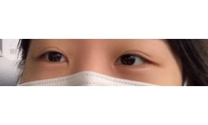 눈 재수술 일주일 차 !!
