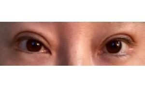 쌍꺼풀재수술.눈매교정.뒷트임복원