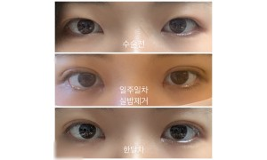 재수술 매몰 + 앞트임 한달차 후기