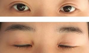 눈재수술 1일차 후기 (긴글 주의)