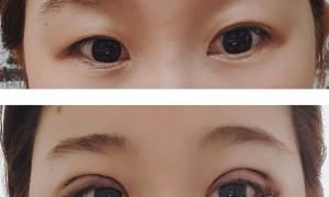 눈 재수술 후기
