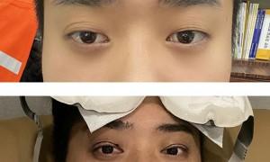 남성 쌍꺼풀 + 눈매교정 수술후기